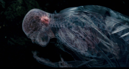 Slither - X-Ray Worm Infection